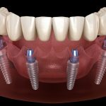 How Are Dental Implants Fitted