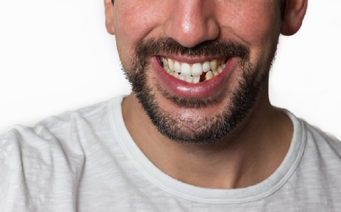 What Options You Have For Replacing Missing Teeth